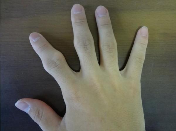 太愛折手指頭的下場